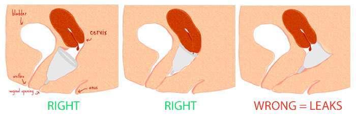 Dónde debería ubicarse tu copa menstrual para ser eficiente